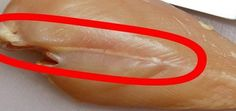 If You See These White Lines On Chicken Meat, You Should Think Twice About Eating It – Natural News Natural News, Natural Health, Chicken Steak, Lose 40 Pounds, Food Intolerance, Meat Chickens, Lean Protein, Protein Sources, Weight Loss Smoothies