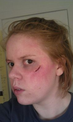 Practice on injury makeup - some fake bruising and cuts!