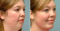 Medicinas Naturales: Increíbles ejercicios con el fin de reforzar tu piel floja y perder papada