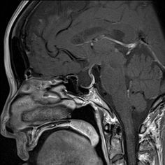 The infundibulum sign is helpful in distinguishing an empty pituitary sella from a cystic lesion of the pituitary region. In the former, although the sella is enlarged, there is no mass as such and the pituitary infundibulum traverses the enlarged sella to its floor where residual pituitary tissue is present. http://radiopaedia.org/play/158/case/24490/discussion