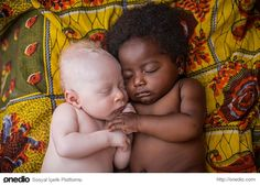 an albino baby with his cousin.