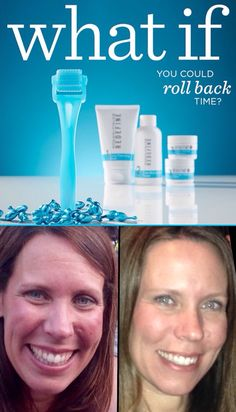 I love love love this triple threat!!! Total game changer for my skin!!  In a clinical study, participants experienced a 50% improvement in their REDEFINE Regimen results when incorporating the AMP MD System. www.jilljohnson22.myrandf.biz #myskinspeaksforitself #skincarepowerhouse #getyourrollon