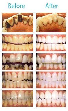 Mira la diferencia y juzga por ti mismo, no esperes mas y pide cita con tu Dentista