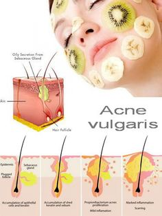 Acne and Pimples Remedies. All-natural means to get rid of and prevent Acne. How To Prevent Pimples For Teenagers Anti Aging Skin Care, Natural Skin Care, Pimples Remedies, Skin Care Routine For 20s, How To Get Rid Of Pimples, Best Acne Treatment, Acne Treatments, Facial Treatment, Home Remedies For Acne