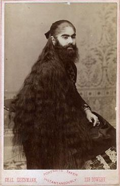 Annie Jones (c. 1860 – 1902) was an American bearded woman, born in Virginia. She toured with showman P. T. Barnum as a circus attraction. It is unconfirmed if this was a case of hirsutism or an unrelated genetic condition that affects children of both sexes and continues into adult years.