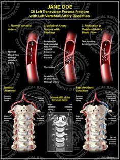 Cervical Artery Dissection is a tear in the lining of the vessels (carotid or vertebral artery) supply blood/ oxygen to the brain.  Most common cause of stroke in young people.