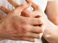 The 5 Natural Ways to Fight Psoriasis Naturally. In addition, Psoriasis is a chronic, non-contagious skin disease and still unknown causes. Home Treatment, Nail Treatment, Poison Ivy, Vitamin C Pulver, Get Rid Of Eczema, Signs, Recipes, Healthy Life
