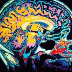 Comer en exceso puede causar el envejecimiento del cerebro, mientras que comer menos activa una molécula que ayuda al cerebro a mantenerse joven.