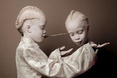 Des jumelles albinos brésiliennes prennent d'assaut l'industrie de la mode avec leur beauté unique.