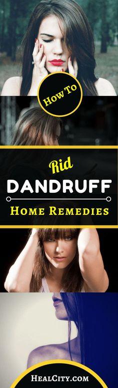 #HomeRemedies For #Dandruff #DandruffHomeRemedies #dandrufftreatment #dandruffsolutions