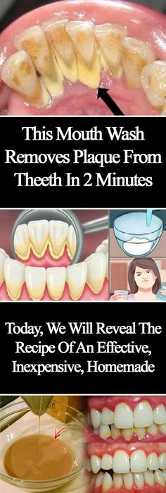 This Mouthwash Removes Plaque From Teeth In 2 Minutes Click Here To Read
