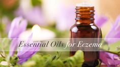Essential oils for eczema treatment