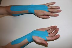 Kinesio tape for carpal tunnel syndrome. Lots of you might wonder what is the colorful tape kept appearing on Olympic games. The tape i. Kinesio Tape, Kinesiology Taping, Carpal Tunnel Relief, Carpal Tunnel Syndrome, Carpal Tunnel Exercises, Tendinitis, Massage Therapy, Spa Massage, Chiropractic