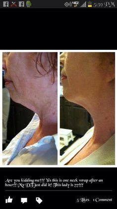 Chin/neck and face wraps are Amazing all natural products! Your body will love you for it, what have you got to lose? :) info@andreawraps.com