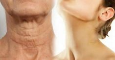 Simple Ways On How To Make Your Neck Look Younger This Is Just Amazing! Unfortunately, one of the first signs of aging is sagging skin on the neck. Beauty Secrets, Beauty Hacks, Beauty Tips, Beauty Products, Cosmetic Treatments, Sagging Skin, Tips Belleza, Look Younger, Younger Skin