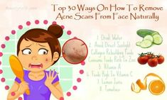 Natural Acne Remedies Top 30 Ways On How To Remove Acne Scars From Face Naturally - How to remove acne scars from face? Here are 30 ways to remove them naturally. Cystic Acne Treatment, Natural Acne Treatment, Scar Treatment, Acne Treatments, Rosacea, Scar Remedies, Natural Acne Remedies, Home Remedies For Acne, Distance