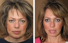 Learn How To Perform Face Restoration Workouts To Improve Your Face