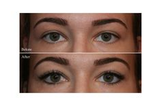 Tips for maintaining beautiful lashes during chemotherapy