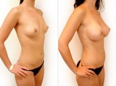 Situation familiar Teens nude with breast implants join. agree