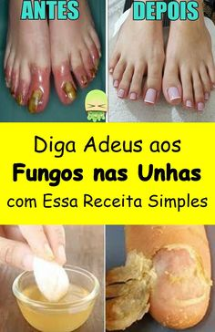 Pin by Maria jose on Coisas para comprar in 2019 Diy Beauty, Beauty Skin, Health And Beauty, Beauty Hacks, Beauty Tips, Maria Jose, Weighted Blanket Diy, One Piece Outfit, Nail Fungus