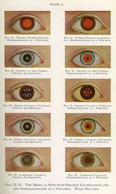 medical history eyes results - ImageSearch Diseases Of The Eye, General Practitioner, Nurse Practitioner, Vintage Medical, Bizarre, Human Eye, Medical Illustration, Science Illustration, Medical History