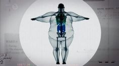 体重180キロ男性を透かすとこんな感じらしい。興味深い。