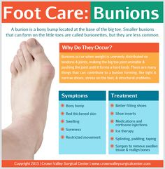 Foot Care: Bunions