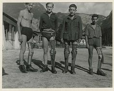Prosthetics were also an new advancement in WWI