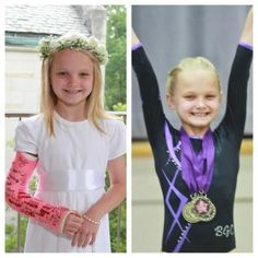 When a balance beam fall left Kate with a broken elbow, the gymnast wasn't sure she could return to the gym. Thanks to a dedicated spirit and intense physical therapy, she bounced back in time to qualify for the state meet. Way to go, Kate! Broken Elbow, Arm Cast, Amazing Gymnastics, Gymnastics Workout, Balance Beam, Sports Medicine, Childrens Hospital, Physical Therapy, Pediatrics