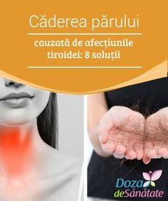 Thyroid, Hair, Thyroid Gland, Strengthen Hair
