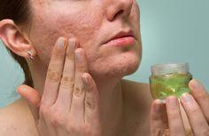 Après avoir effectué un traitement pour enlever les boutons de la peau, il est probable que le visage reste tâché ou marqué.