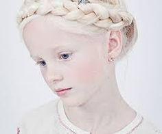 Image result for fairy albino