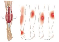 Plantar Fasciitis Treatment Trigger Points
