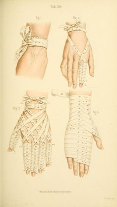 """hicockalorum: """" floresetmanus: """" Manual of Surgical Bandages, Devices and Dressings 1859 """" what if a person just wears one of these because they are beautiful? """""""