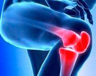 El 40% de las personas mayores de 60 años, pueden padecen de dolores articulares. Las enfermedades que causan el dolor articular son generalmente crónicas y difíciles de tratar.