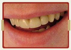 PruDent-Hungary | Dentist Hungary