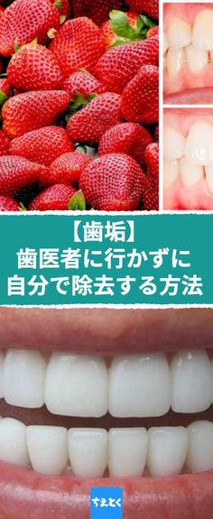 Plaque: how to remove it yourself without going to the dentist Care calculus easily at home Remove plaque, easily Tartar Removal, Calculus, Health Tips, Beauty Hacks, Strawberry, Health Fitness, How To Remove, Medical, Fruit