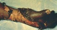 Full-thickness burn injury Burn Injury, Nclex, Nursing, Burns, Breast Feeding