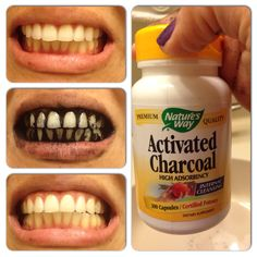 Teeth Whitening I just did the craziest thing! Teeth whitening with active charcoal! I'm have very sensitive teeth and the strips hurt and are expensive, this is my first time will see what happens during the next couples days! Teeth Whitening Remedies, Charcoal Teeth Whitening, Best Teeth Whitening, Dental Health, Teeth Health, Oral Health, Teeth Care, Natural Health Remedies, Teeth Cleaning