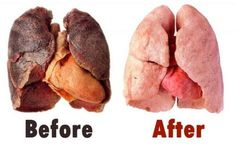 Lung Elixer Makeover - Lung-Cleaning Elixir  For this recipe, you will need the following:  One kilogram of onion, One small ginger root, peeled, One liter of water, 400 gram and tumeric.