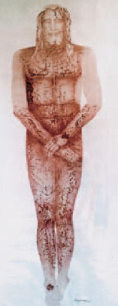 Tortured Christ based on the Shroud image, upper arms are included. Jesus' upper arms would have been scourged, bruised, cut and bled like the majority of his body