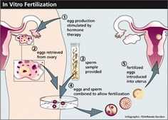I get many  many questions regarding what In Vitro Fertilization (IVF) is and how it works that I thought I would share the information with my world-wide Blog & Pinterest audience. This is the first installment in a series that will attempt to explain the IVF process, not in scientific terms but in a way that the average patient can understand.