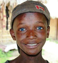 blue eyed African boy from Sierra Leone