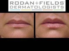 Don't forget about your lips...afterall they are also part of your face. Keep your lips youthful as well.   https://rfampedskin.myrandf.com/Shop/Product/AALS060