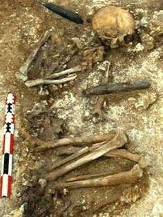 Esqueleto del neolítico (65 km al sur de París, Francia)    Restos de un hombre al que amputaron el brazo hace más de 6.900 años. Fue anestesiado, le cortaron el antebrazo con un escalpelo de sílex y lo curaron con salvia    Restos de un hombre al que amputaron el brazo hace más de 6.900 años. Fue anestesiado, le cortaron el antebrazo con un escalpelo de sílex y lo curaron con salvia