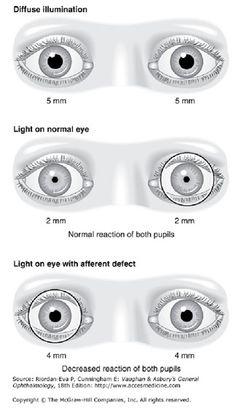 Eye-pupils.jpg (324×568)