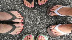 Pay attention if your feet are sending you any of these 15 warning signs.