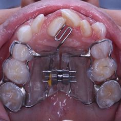 Orthodontic appliance for expanding the arch and protruding the central incisor Dental Kids, Dental Braces, Dental Art, Dental Surgery, Dental Implants, Dental Reconstruction, Orthodontics Marketing, Dentistry For Kids, Orthodontic Appliances