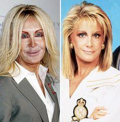 Joan Van Ark Plastic Surgery Disaster