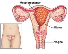 learn the basic pathology of molar pregnancy/ hydatidiform mole Molar Pregnancy, Ectopic Pregnancy, Pregnancy Ultrasound, Early Pregnancy, Nursing Pins, Ob Nursing, Nursing 2016, Nursing Board, Health Education